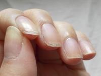 Темная полоса на ногте