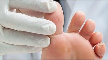 Пальцы ног, пораженные гибком