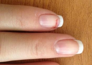 Для восстановления ногтя, обломанного до крови, лучше обратиться к специалисту