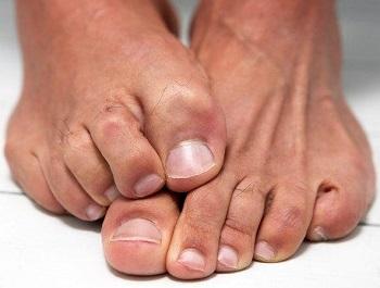 Утолщенный ноготь на ноге