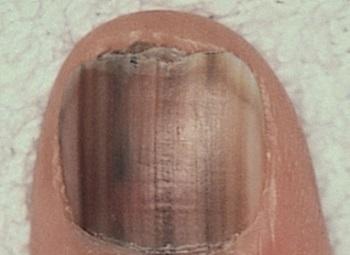Черные полоски на ногтях могут свидетельствовать о серьезном заболевании