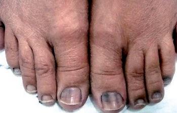 Появление незначительного числа черных полос на ногтях допустимо у представителей азиатской или африканской рас