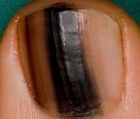 Причины появления черных полосок на ногтях