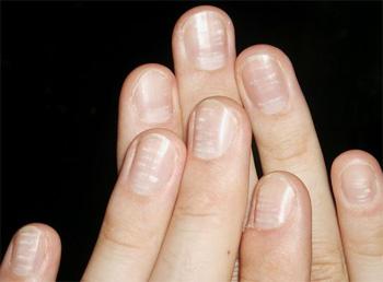 Белые пятна на ногтях сулят хорошие новости