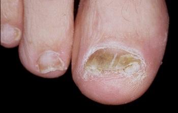 Грибок ногтей