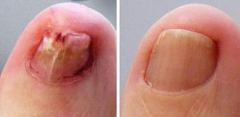 До и после лечения грибка ногтей лазером
