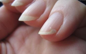 Поломка ногтя