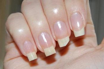 Поломка наращенного ногтя