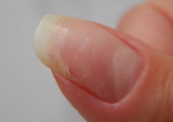 Недостаток витаминов - одна из ключевых причин ломкости ногтей