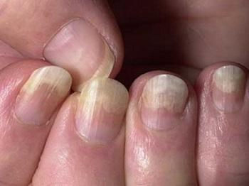 Отслоение ногтей - один из признаков онихомикоза