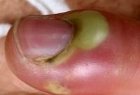 Лечение околоногтевого панариция