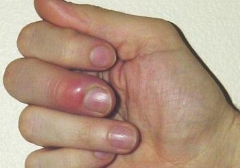 Покраснение кожи вокруг ногтя - симптом панариция