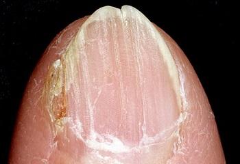 Онихошизис ногтя