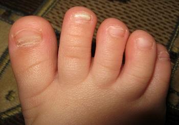 Дистрофия ногтей у ребенка