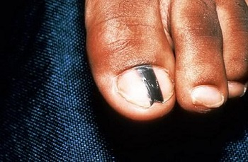 Меланонихия ногтя