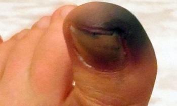 Почернение ногтя в сочетании с травмой пальца