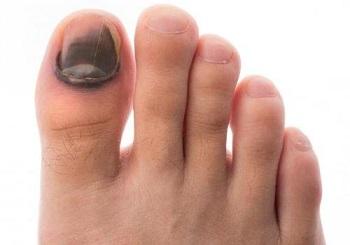 Почернение ногтя вследствие ушиба