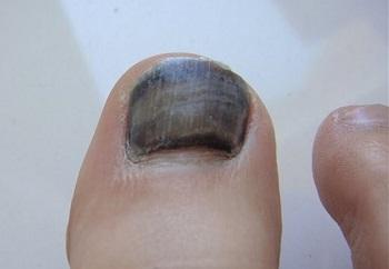 Причины почернения ногтей на ногах