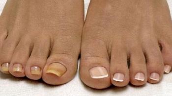 Противогрибковые препараты для ногтей