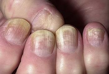 Грибок ногтей часто сопровождается наличием продольных полос на ногтях