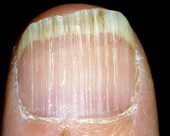 Как избавится от продольных полос на ногтях