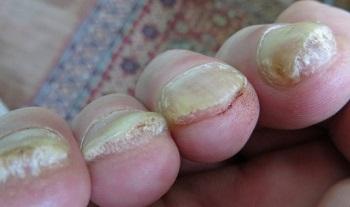 Запущенная стадия псориаза ногтей