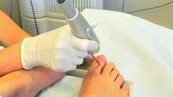 Лазерная терапия псориаза