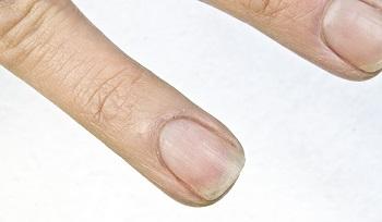 Ногти, ребристые по вертикали