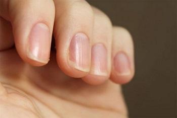 Почему ногти на руках становятся ребристыми