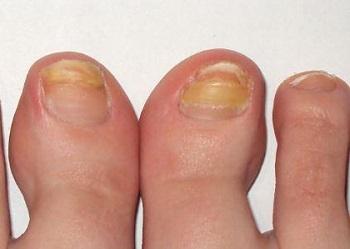 Пожелтение ногтей - один из симптомов грибка