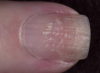 Ноготь, поврежденный маникюром