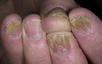 Расслоение ногтя вследствие онимикоза
