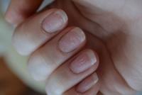 Причины слоящихся ногтей на руках