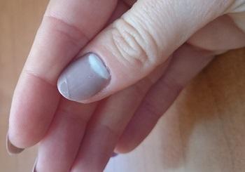 Трещина на геле-лаке вследствие удара
