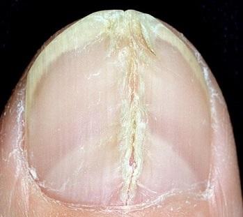 Продольная трещина ногтя