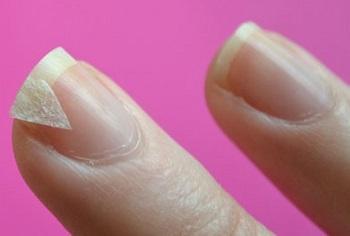 Процесс ремонта трещины ногтя