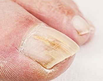 Утолщение ногтевых пластин на ногах