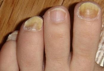 Утолщение ногтя часто сопровождается изменением цвета