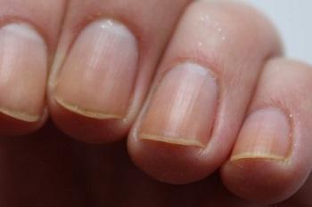 Проблемные желтые ногти