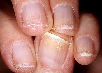 Расслоение - одна из основных проблем ногтей