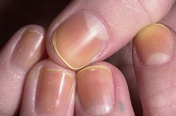 Жёлтые ногтевые пластины
