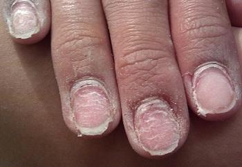 Агрессивное механической воздействие на ногти ухудшает их состояние