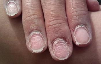 Ногти после неаккуратного снятия геля-лака