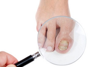 Диагностика вросшего ногтя