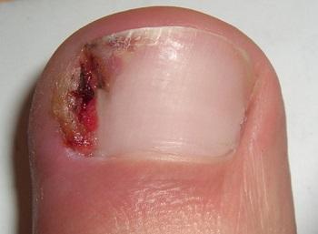 Осложнения вросшего ногтя