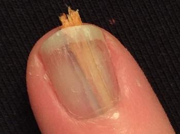 Заноза под ногтем