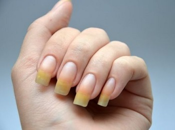 Использование некачественных лаков для ногтей приводит к пожелтению ногтевых пластин