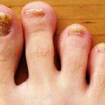 Грибок ногтей нижних конечностей, или онихомикоз – распространенная инфекция, поражающая не менее 10% населения по всему миру. Грибок в запущенных случаях приводит к выраженному косметическому дефекту ногтевой пластины и к ее полному разрушению. Заболевание легче и быстрее лечится на начальной стадии его развития, поэтому нужно уметь определять основные симптомы грибковой инфекции.  357
