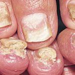 Патологическое изменение формы, толщины, внешнего вида и цвета ногтевой пластины в медицине обозначается термином ониходистрофия. Заболевание может поражать все пальцы на руках и ногах, в запущенных случаях является видимым косметическим дефектом и требует комплексного подхода к восстановлению нормальной структуры ногтей.  363