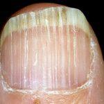 Являясь серьезным косметическим дефектом, продольные полосы на ногтях свидетельствуют о возникновении проблем со здоровьем, которые требуют диагностирования и начала лечения. Выявление вероятных причин появления таких полос, а также различные методы лечения позволят поскорее вернуть природную красоту и привлекательность ногтям.  536